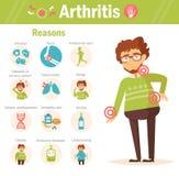 arthritis razões Vetor imagens de stock royalty free