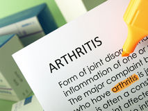 Arthritis treatments Royalty Free Stock Photography