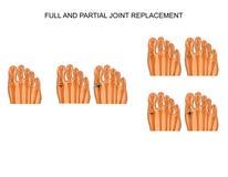 Arthroplasty du joint de gros orteil illustration stock