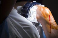 Arthroscopy αναισθητικό γονάτων χειρουργικών επεμβάσεων ορθοπεδικής Στοκ Φωτογραφία