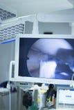 Arthroscopy οθόνη λειτουργίας χειρουργικών επεμβάσεων νοσοκομείων Στοκ Εικόνες