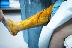 Arthroscopy ορθοπεδική λειτουργία χειρουργικών επεμβάσεων γονάτων Στοκ Φωτογραφία