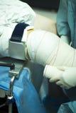 Arthroscopy ορθοπεδική λειτουργία χειρουργικών επεμβάσεων γονάτων Στοκ εικόνα με δικαίωμα ελεύθερης χρήσης
