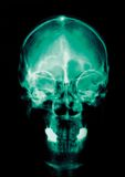 Article médical Photographie stock