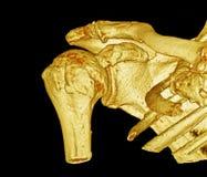 Articolazione scapolo-omerale, immagine di CT, 3D Immagini Stock Libere da Diritti