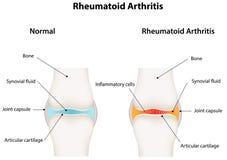Articolazione sinoviale di artrite reumatoide Immagine Stock Libera da Diritti