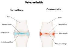 Articolazione sinoviale di osteoartrite Fotografia Stock