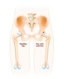 Articulação da bacia com osteodistrofia ilustração royalty free