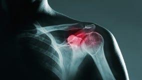 Articulação do úmero humana no raio X vídeos de arquivo