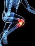 Articulação do joelho destacada Imagens de Stock