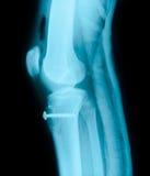 Articulação do joelho direita e raio X do equipamento médico Fotografia de Stock