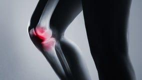 Articulação do joelho e pé humanos no raio X, no fundo cinzento vídeos de arquivo