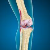 Articulação do joelho humana. Fotografia de Stock
