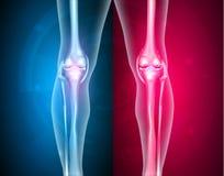 Articulações do joelho saudáveis e insalubres Imagem de Stock Royalty Free