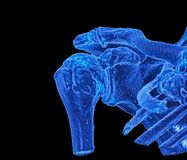 Articulation de l'épaule, image de CT, 3D Photo stock