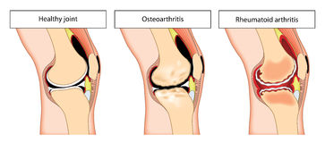Articulation du genou arthritique Photos libres de droits