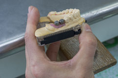 Articulator in metal structure of a dental bridge and gum. Royalty Free Stock Images