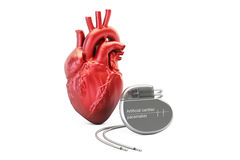 Artificial cardiac pacemaker, 3D rendering. On white background vector illustration