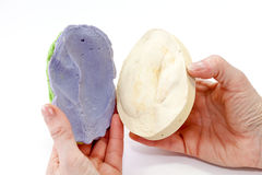 Artificial Human Ear Negative Plaster Form. The negative blue form of the head part around amputated ear filled with plaster for getting positive form stock photo
