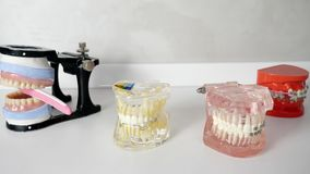 Artificial jaw bones with dental braces laying on white table. Close-up stock video footage