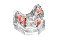 Artificial jaw. Glass jaw model with implanted dentures Stock Photography