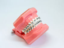 Artificial model of human jaw with wire colorful braces attached stock images