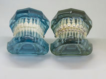 Artificial model of human jaw with wire colorful braces attached stock photos