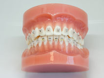 Artificial model of human jaw with wire colorful braces attached royalty free stock photography