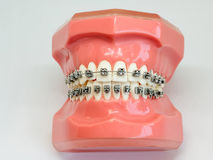 Artificial model of human jaw with wire colorful braces attached. Human jaw or teeth orthodontic dental model with implants dental braces .Dental and orthodontic Royalty Free Stock Image