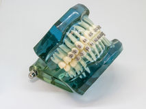 Artificial model of human jaw with wire colorful braces attached stock image