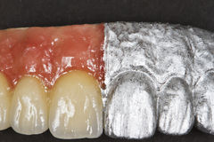 Artificial teeth Stock Image