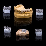 Artificial tooth Royalty Free Stock Images