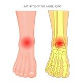 Artretyzm kostki złącze Obrazy Stock