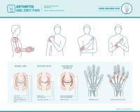 Artrit och gemensamt smärtar stock illustrationer