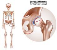 Artrite anca Imagens de Stock