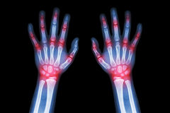 Artrite da artrite reumatoide, da gota (raio X do filme ambas as mãos da criança com a artrite comum múltipla) (médica, ciência e fotografia de stock