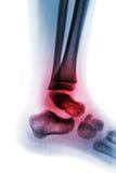 Artrite della caviglia & di x28; Reumatoide & x29 giovanili; Immagini Stock