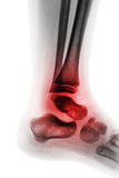 Artrite della caviglia & di x28; Reumatoide & x29 giovanili; Immagini Stock Libere da Diritti