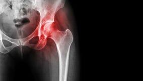 Artrite na articulação da bacia A mostra do raio X do filme inflamou-se da articulação da bacia e da área vazia no lado direito C foto de stock