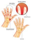 Artrite psoriasica illustrazione di stock