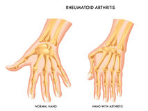 Artrite reumatoide Immagini Stock Libere da Diritti