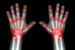 Artrite reumatoide (radiografe as mãos da criança e a artrite comum múltipla) Fotos de Stock