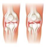 Artrite umana del ginocchio Fotografia Stock