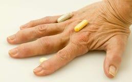 Artritis Royalty-vrije Stock Fotografie