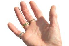 Artritis en la mano de la mujer Imagenes de archivo