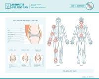 Artritis y dolor común infographic ilustración del vector