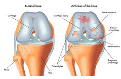 Artrosi del ginocchio Immagini Stock