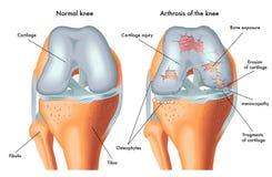 Artrosis de la rodilla stock de ilustración