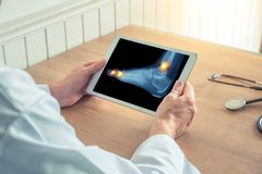 Arts die een digitale tablet met r?ntgenstraal en pijn op de enkel en tenen van de voet houden stock foto's