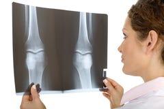 Arts die röntgenstraal bekijkt Royalty-vrije Stock Afbeeldingen